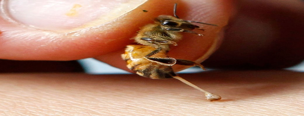 bee-sting-therapy-hp-orig-min